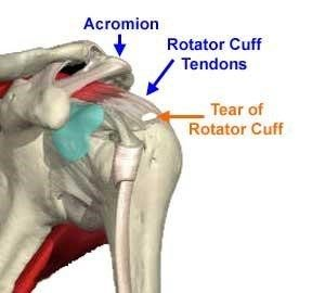 rotator cuff repair Arthroscopic rotator cuff repair post‐operative rehabilitation protocol the following protocol is a general guideline specific protocols will be based on tear size, location, chronicity and other.