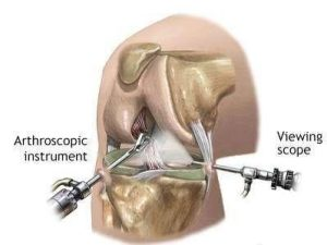 knee anthroscopy
